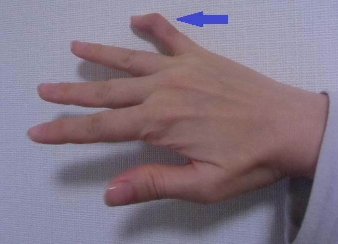 脱臼 小指